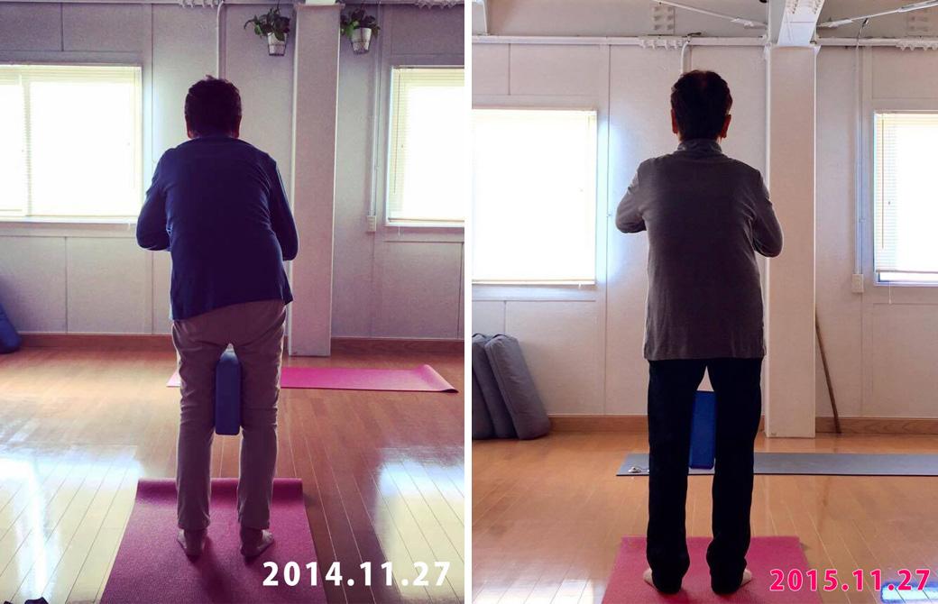 歳を重ねて腰が曲がってしまった女性が1年で腰がほぼまっすぐに改善された比較写真