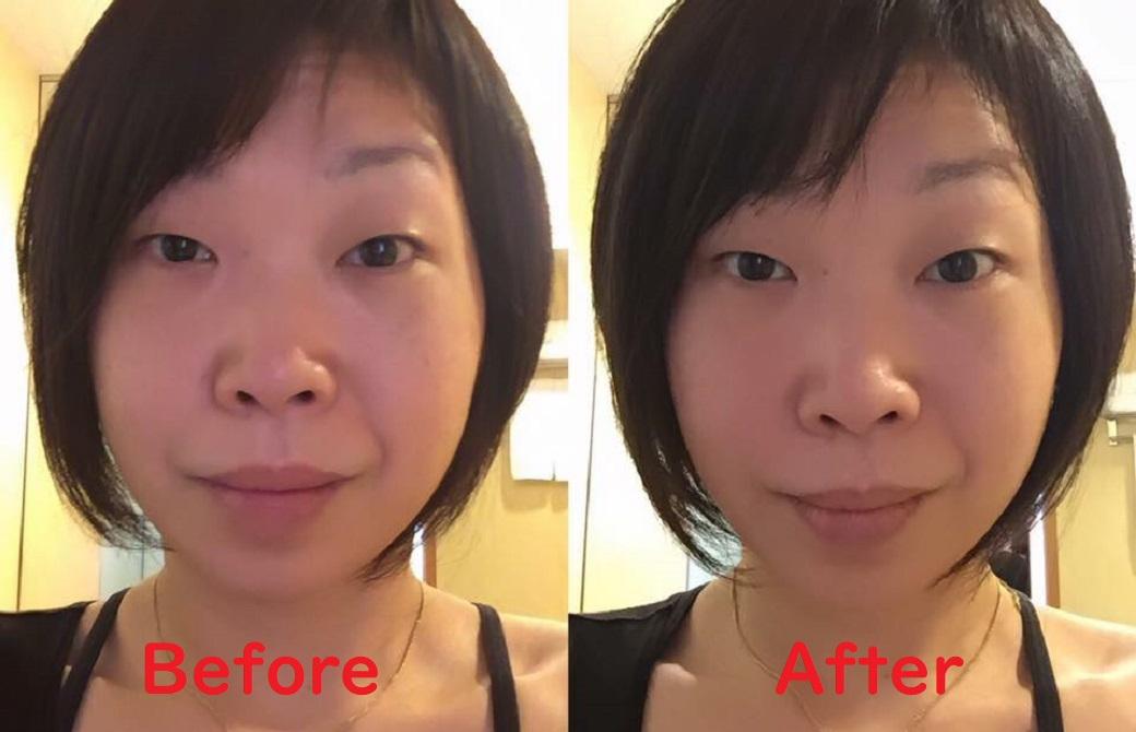 さかたのりこ先生の顔Before&After